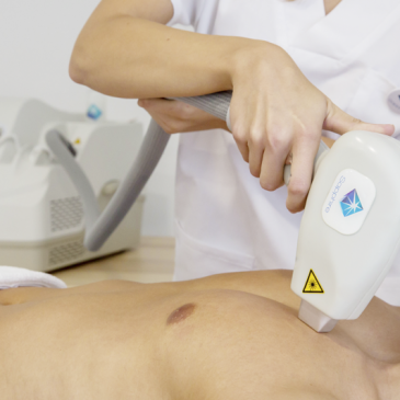 """Why Laser Sapphire Is The Industry's """"Coolest"""" New Laser Hair Removal System"""