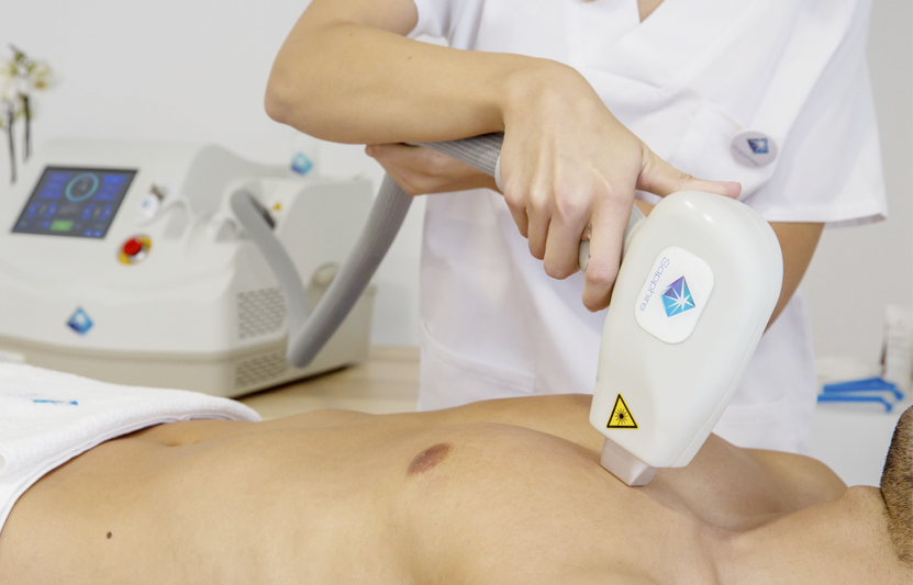 "Why Laser Sapphire Is The Industry's ""Coolest"" New Laser Hair Removal System"