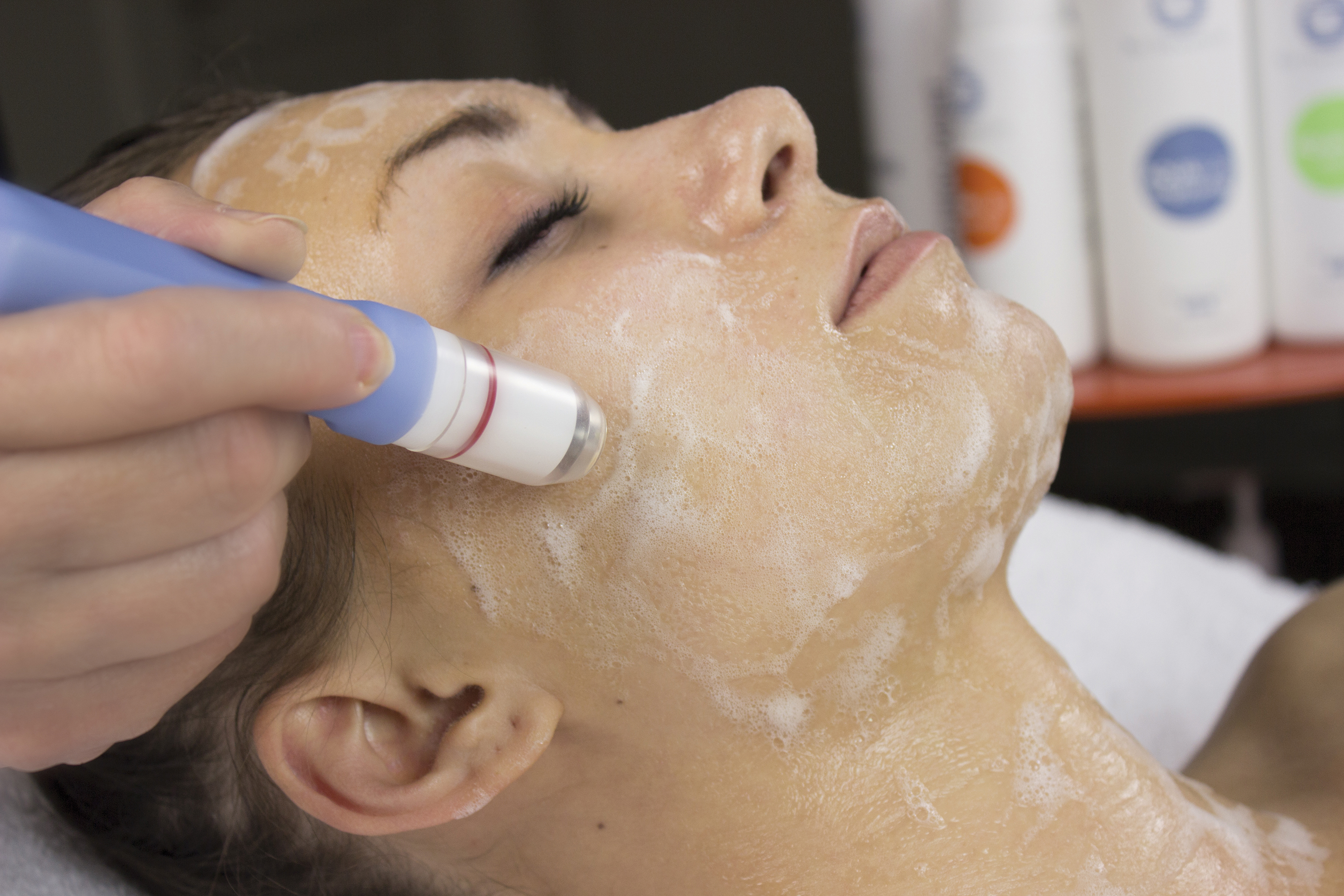 Accelerate Your Facial Results With Hydrodermabrasion
