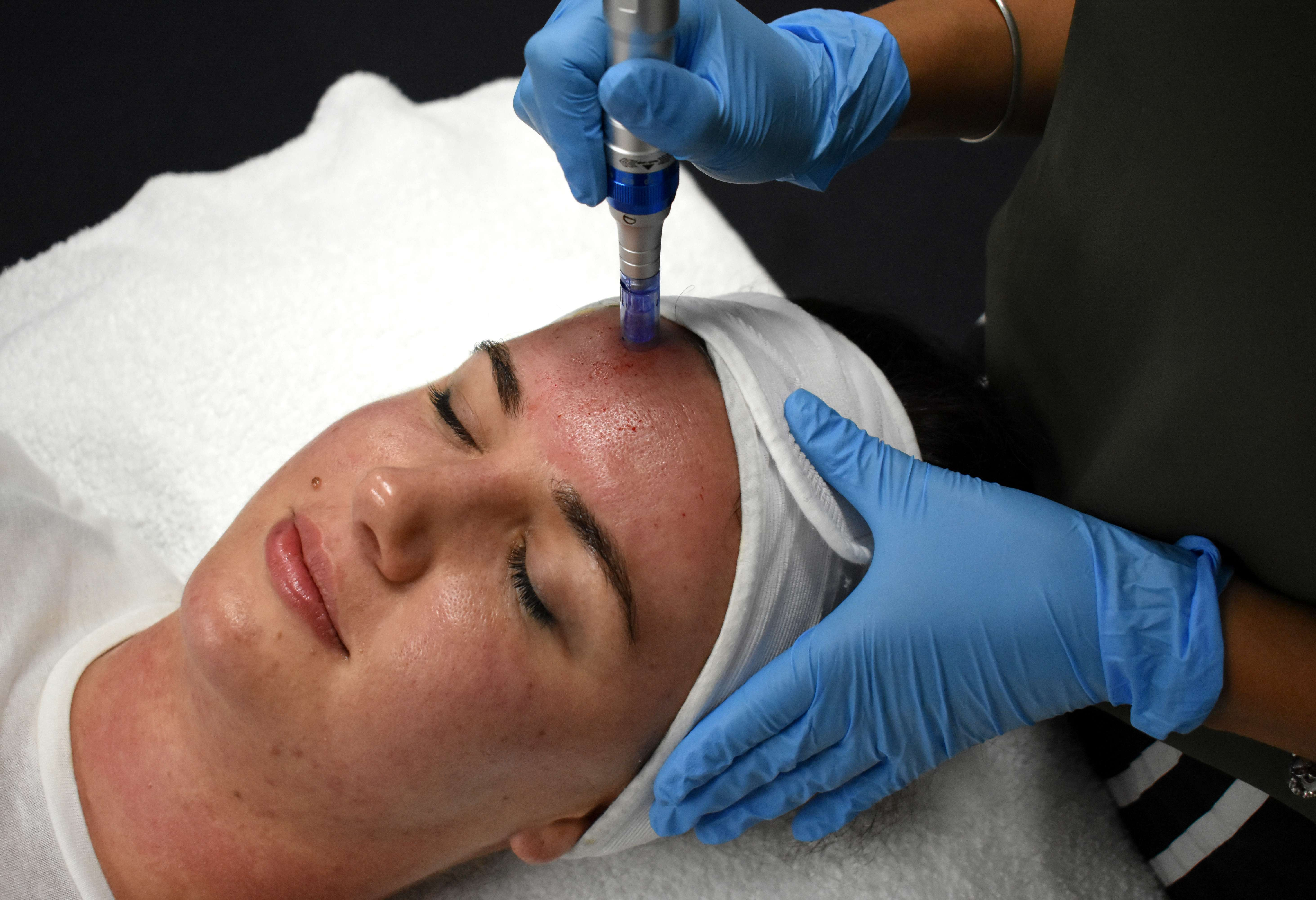Skin Needling: The Pocket-sized Technology Every Beauty Therapist Needs