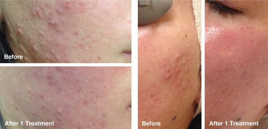 before-and-after-skin-clearing-1