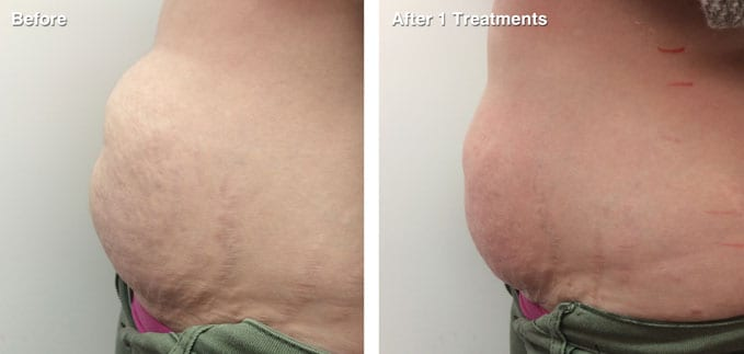 before-after-body-contouring1