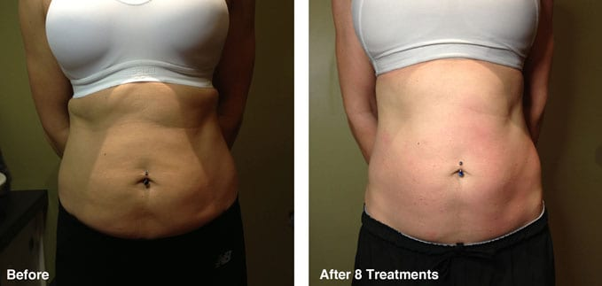 before-after-body-contouring3