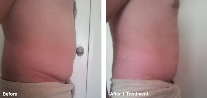 before-after-body-contouring5