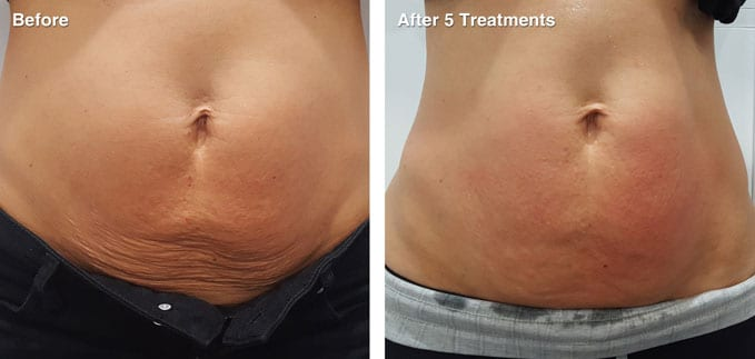 before-after-body-contouring6