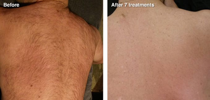 before-after-hair-removal2