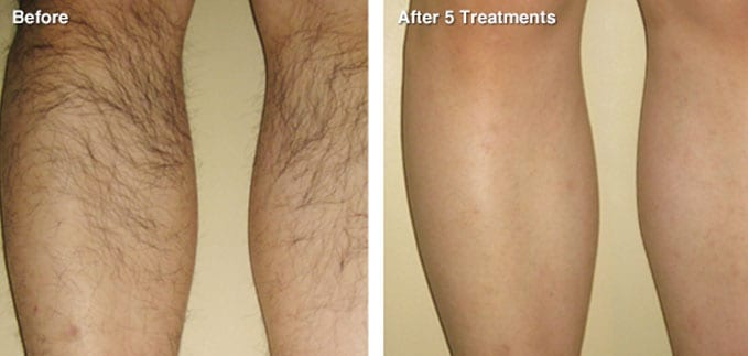 before-after-hair-removal3