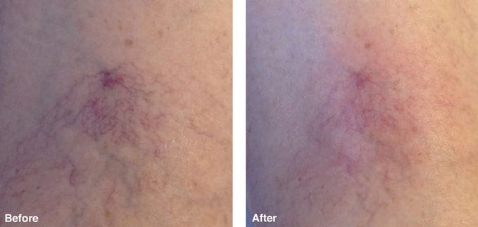 before-after-redness-reduction2