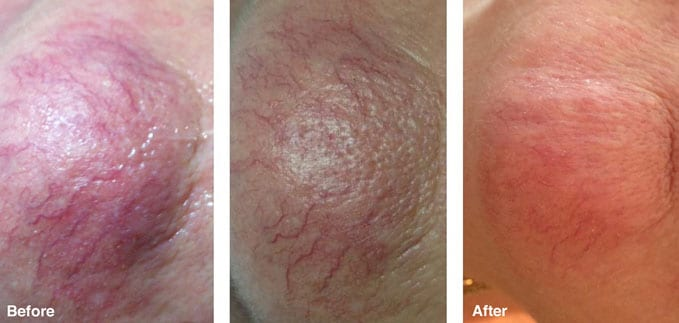 before-after-redness-reduction3