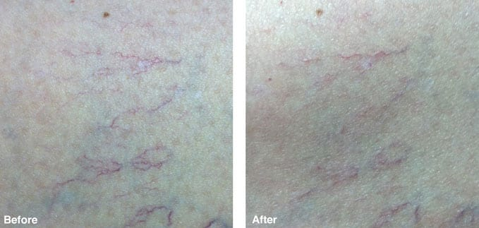 before-after-redness-reduction4