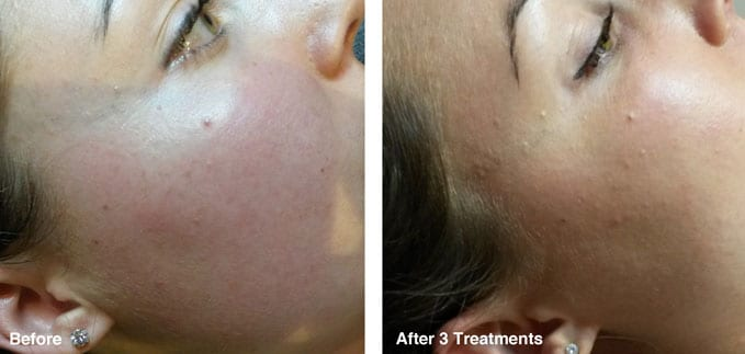before-after-redness-reduction7