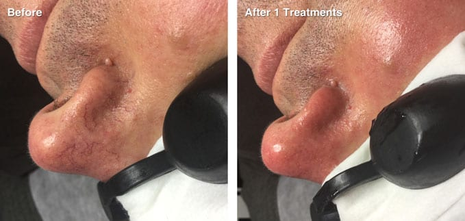 before-after-redness-reduction8
