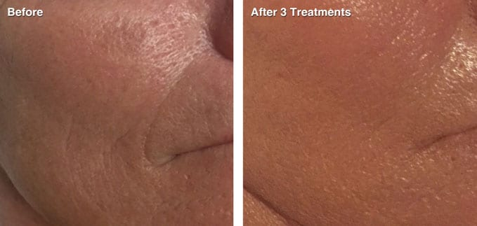 before-after-skin-rejuvenation2