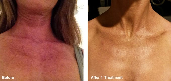 before-after-skin-tone-correction4