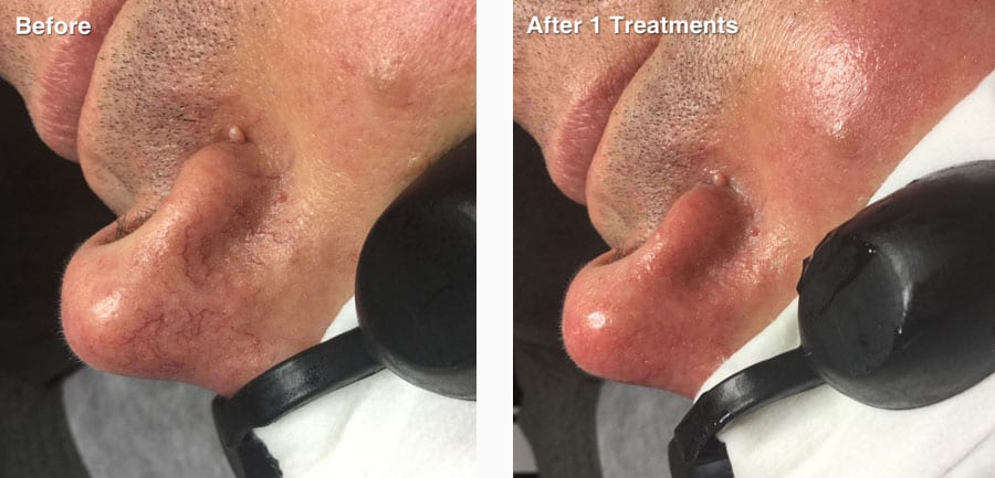 before-after-vascular-new