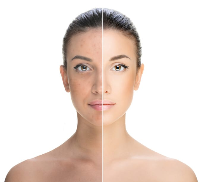 The Rise And Rise Of IPL Skin Rejuvenation - The Global